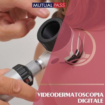 Videodermatoscopia digitale