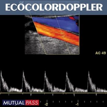 Ecocolordoppler
